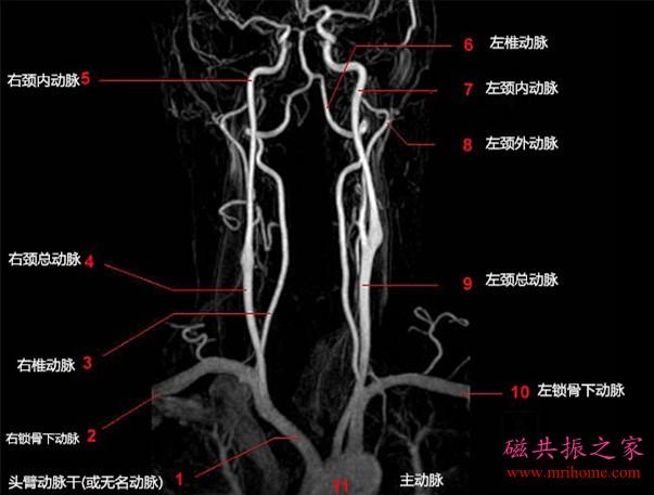 颈部血管磁共振 MRI 解剖